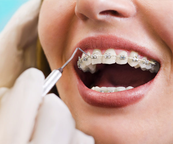 Implants dentaires et orthodontie